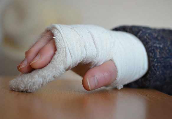 снится сломанная рука