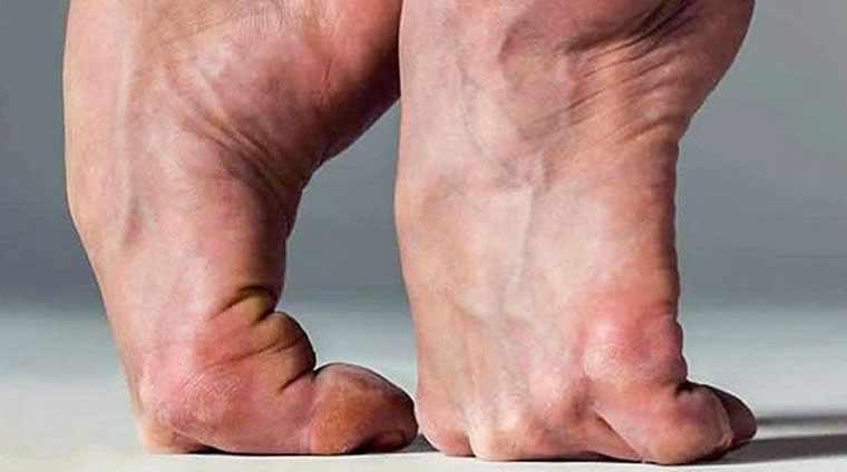 Балетные ноги