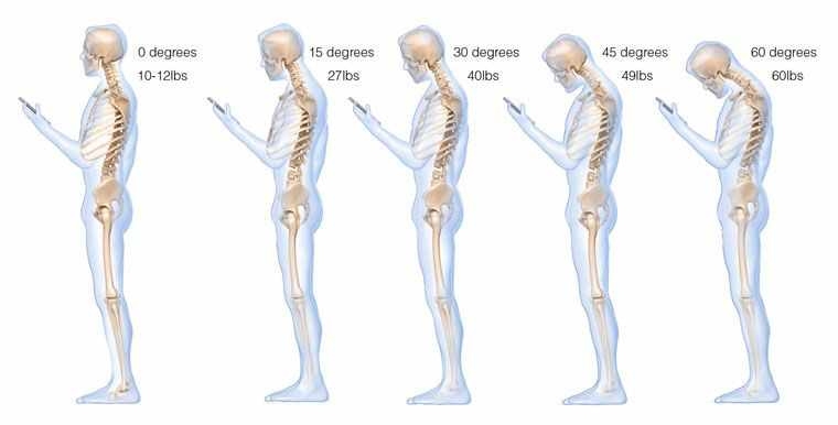 Синдром «текстовой шеи»