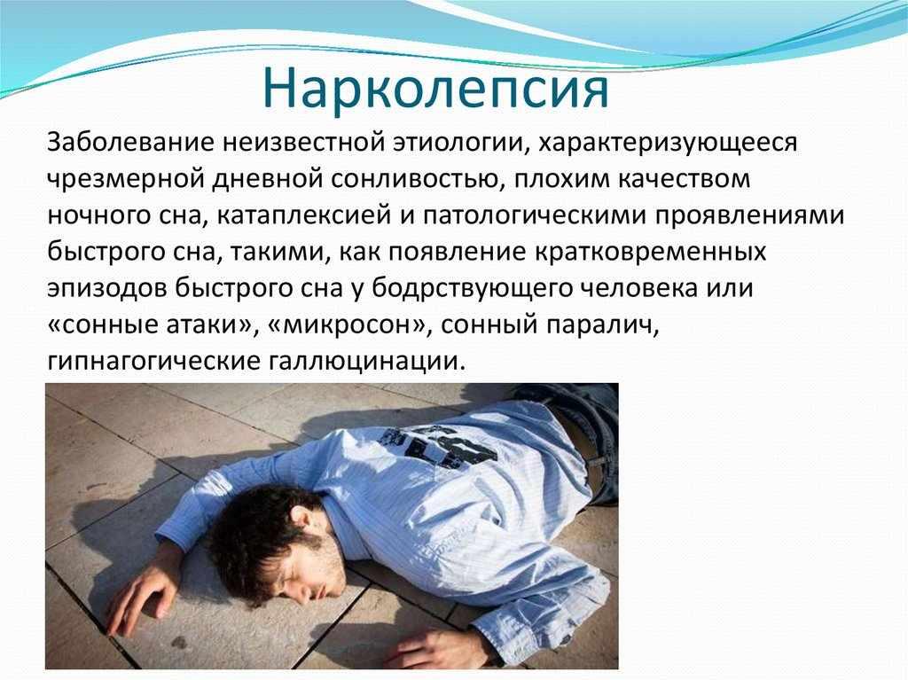 Что такое нарколепсия