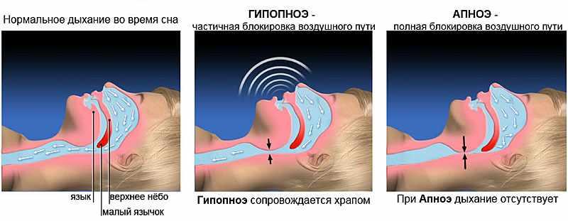 Схема нормального дыхания и при гипопноэ