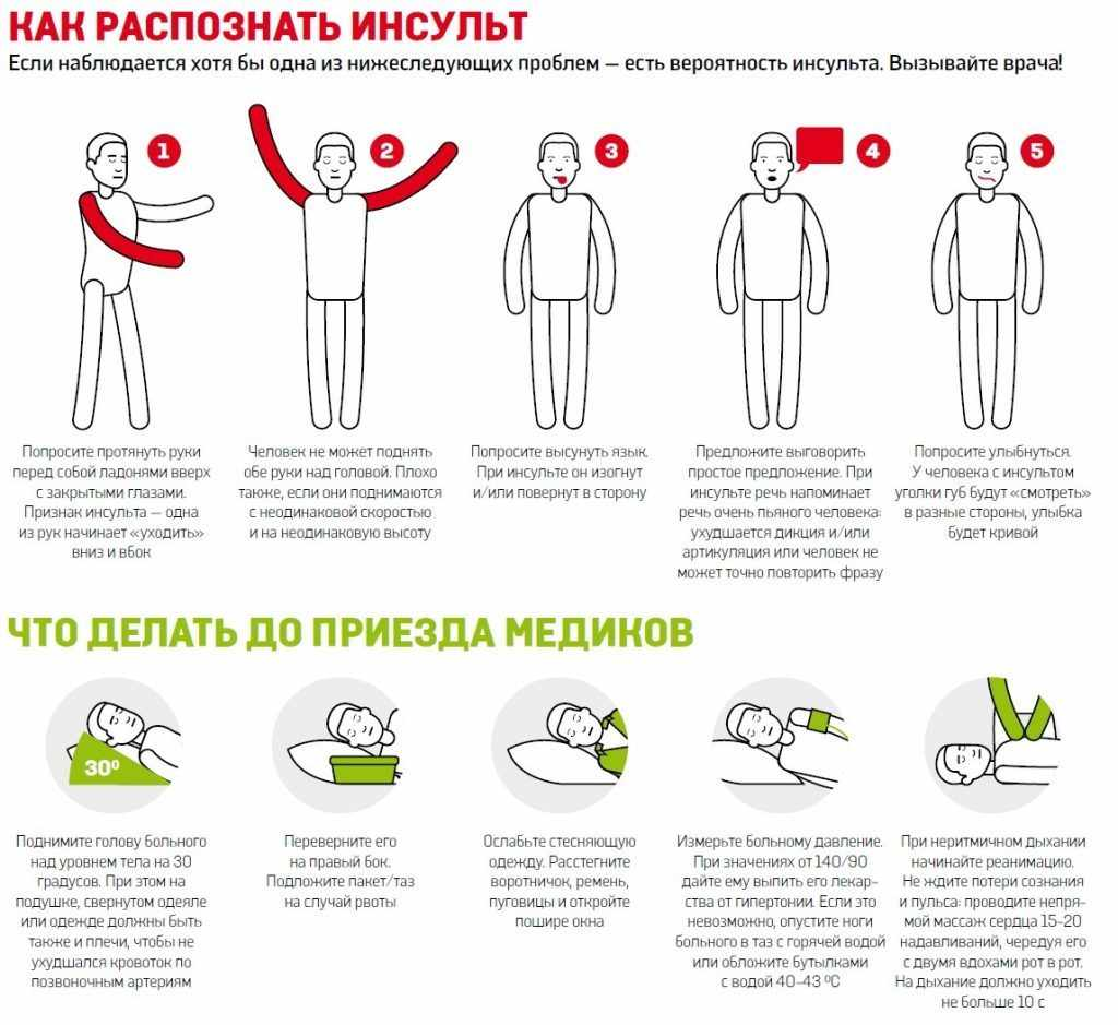 немеют руки и ноги во время сна