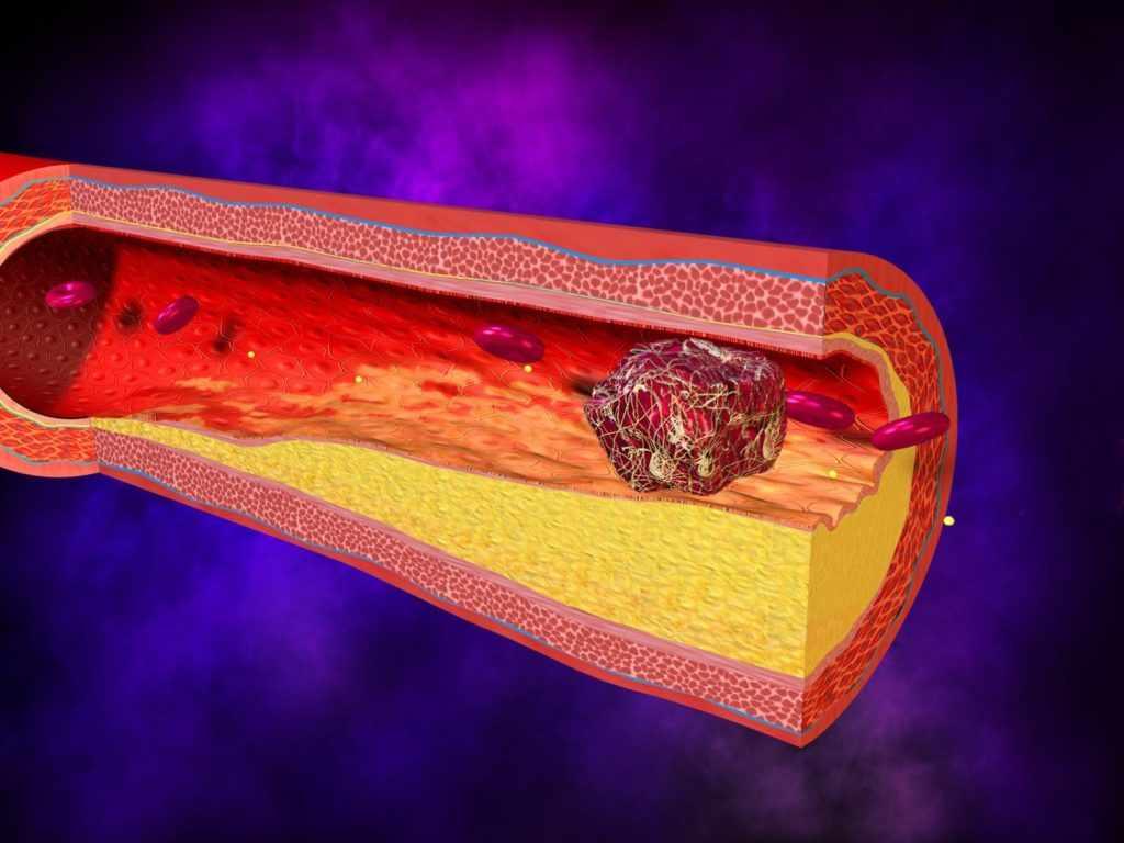 тромб в кровеносном сосуде